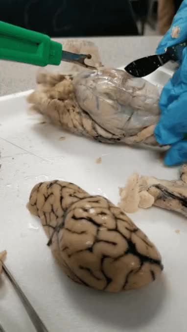 Watch and share Me Dissecting A Sheep Brain. GIFs on Gfycat