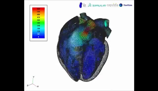 Watch and share FlowVision CFD   Living Heart – Blood Velocity Volume Visualization GIFs on Gfycat