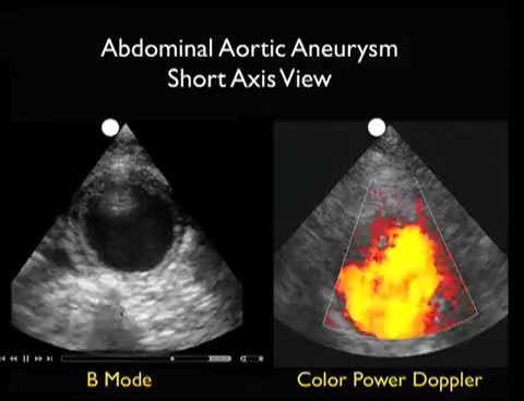 Watch and share Aorta Ultrasound - Aneurysms - SonoSite, Inc. GIFs on Gfycat