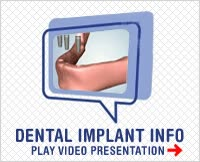 Watch and share DENTAL IMPLANTS IN ORANGE COUNTY, CALIFORIA GIFs on Gfycat