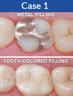 Watch and share Dental Filling GIFs on Gfycat