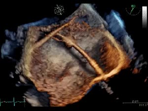 Watch and share Mending A Broken Heart. Literally. Thin Wires Were Inserted Into This Heart To Implant An Artificial Valve Without Open Heart Surgery GIFs on Gfycat