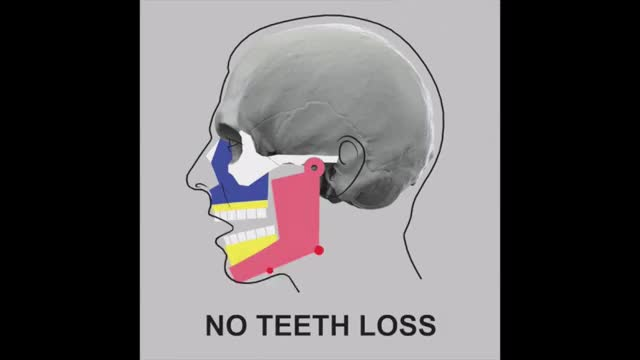 Watch and share Effects Of Losing Your Teeth. GIFs on Gfycat