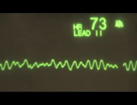 Watch Ventricular Fibrillation - ECG Training Tutorial GIF on Gfycat. Discover more related GIFs on Gfycat