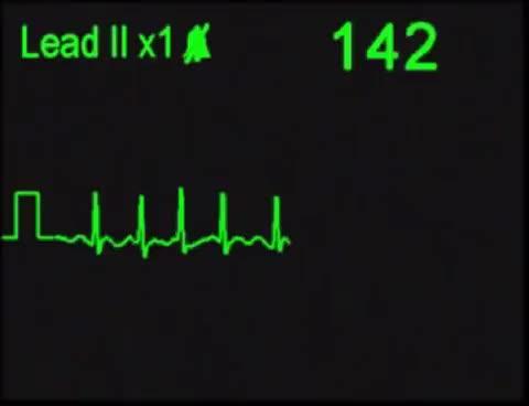 Watch Atrial Fibrillation - AFIB - ECG Simulator - Arrhythmia Simulator GIF on Gfycat. Discover more Training, acls, afib, arrhtyhmias GIFs on Gfycat