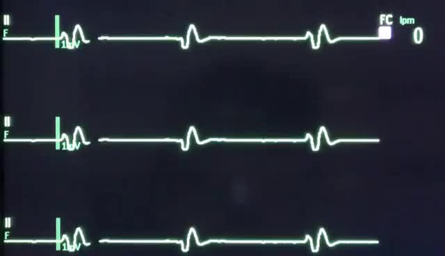 Watch and share Ecg GIFs on Gfycat