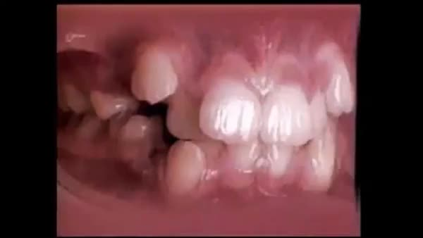 Watch and share Straightening Of Teeth GIFs by makes_mistakes on Gfycat