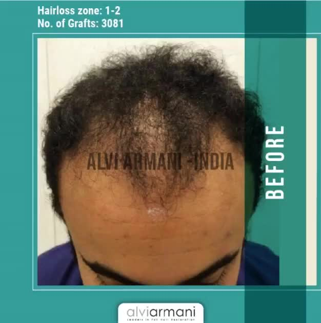 Watch and share Best Hair Transplants Clinic In Mumbai GIFs by Alvi Armani on Gfycat