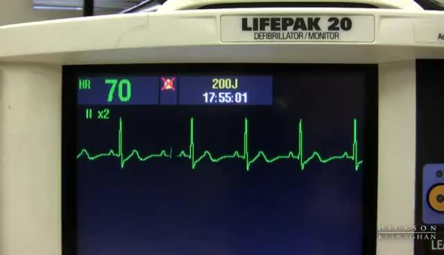 Watch and share EKG Training: Watching And Interpreting The Defibrillator Monitor GIFs on Gfycat