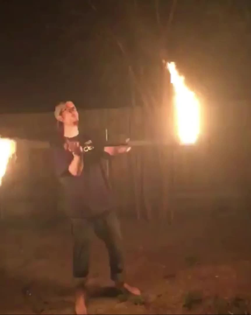 WCGW if I do a spinning fire trick GIFs