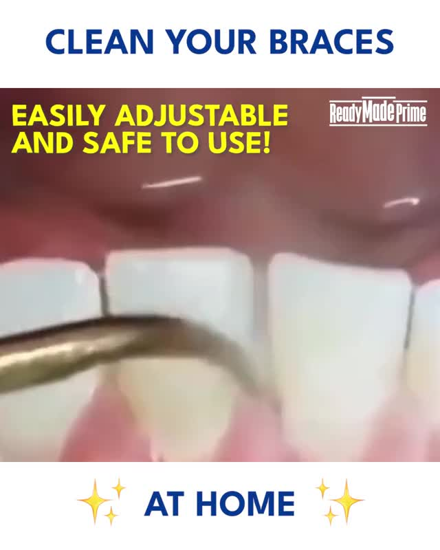 Watch and share BrilliantSmile ™ - Ultrasonic Tooth Cleaner GIFs by Nikkie Cinco Munda on Gfycat