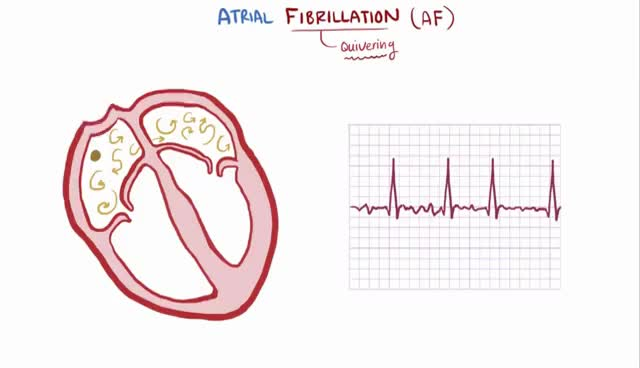 Watch and share Atrial Ecg GIFs on Gfycat