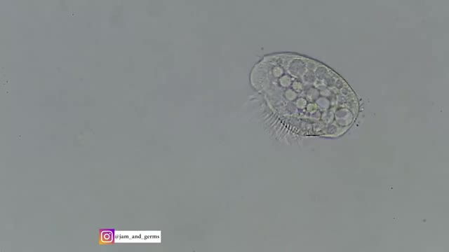 Watch and share Single-celled Organism (Blepharisma) Disintegrates And Dies GIFs by Pardusco on Gfycat
