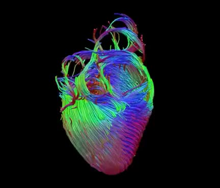 Watch and share Diffusion Tensor Imaging (via MRI) Of The Heart GIFs on Gfycat