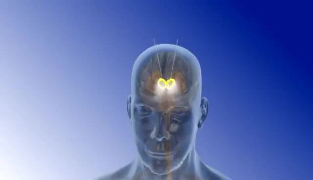Watch Deep Brain Stimulation - 3D Animation || ABP © GIF on Gfycat. Discover more related GIFs on Gfycat
