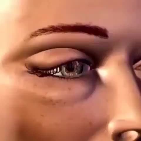 Watch Eyelid surgery. GIF on Gfycat. Discover more educationalgifs GIFs on Gfycat