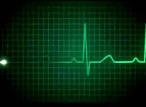Watch and share Heart Sound EKG Hospital Herzschlag GIFs on Gfycat