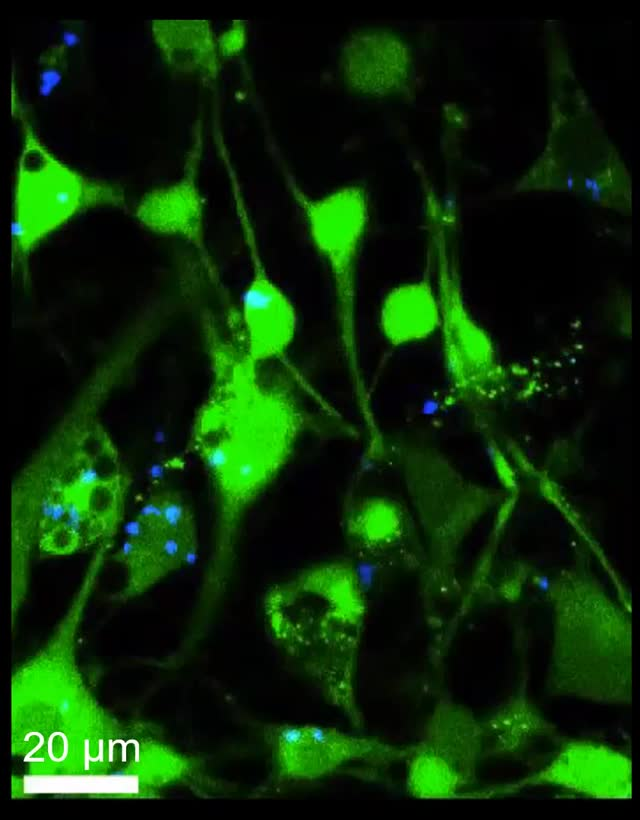 Watch and share Calcium Propagation Cropped GIFs on Gfycat