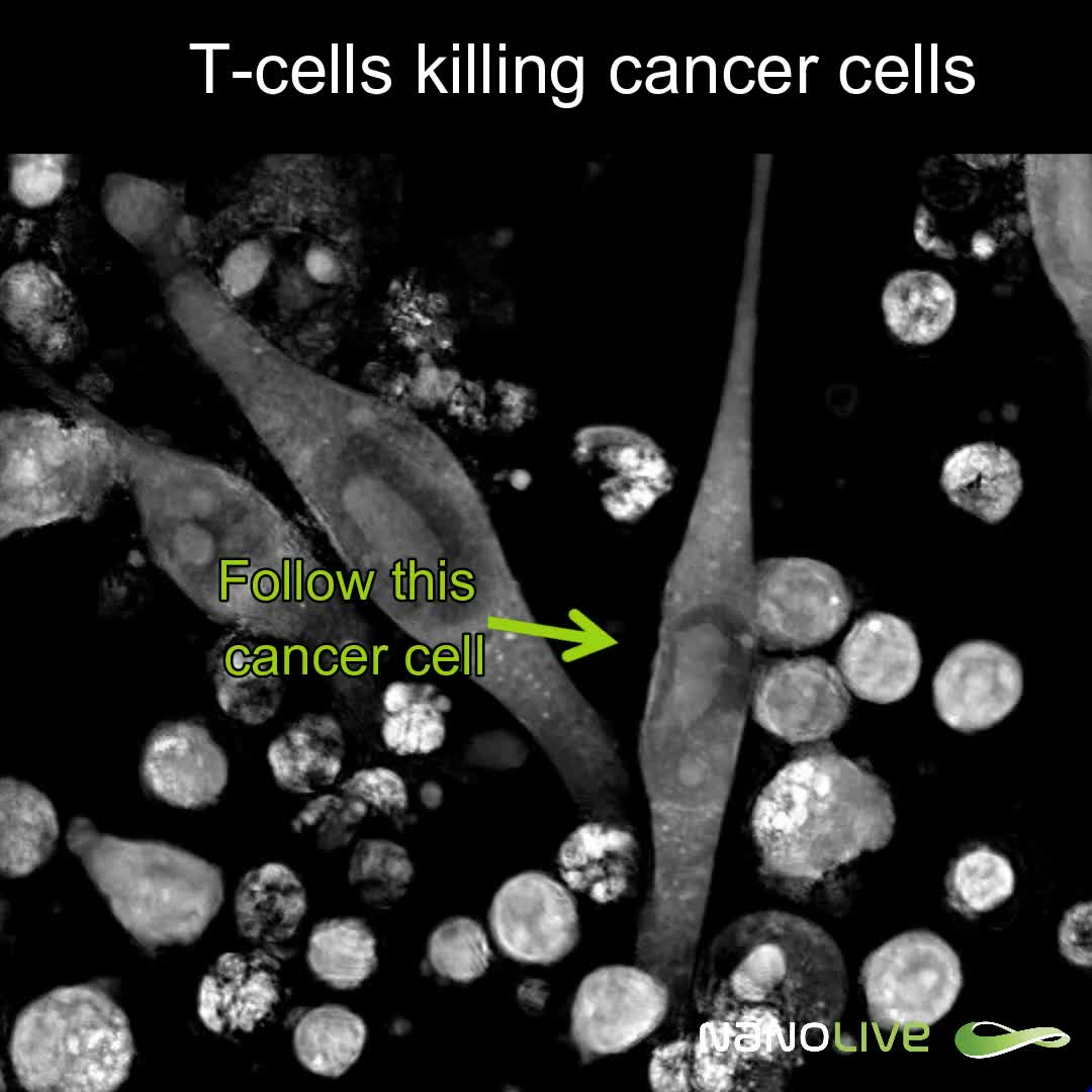 T Cells Killing Cancer Cells