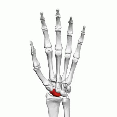 Watch and share Broken Wrist GIFs on Gfycat