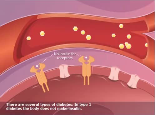 Watch and share What Is Diabetes GIFs on Gfycat