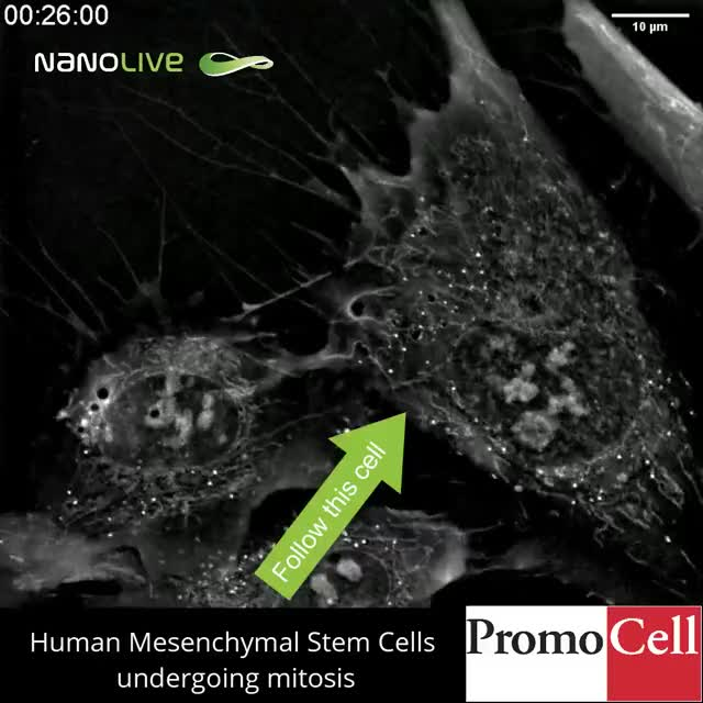Watch and share Label-free Live Cell Imaging Of Mesenchymal Stem Cells Undergoing Mitosis GIFs on Gfycat