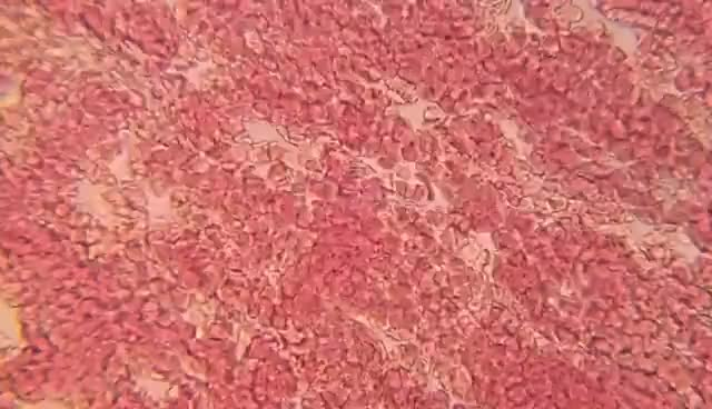 Watch and share ᴴᴰ Sangue Humano Visto Sob Microscópio   Medicina É GIFs on Gfycat