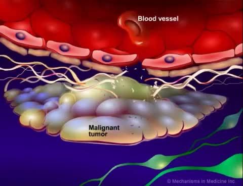 Watch Introduction to Cancer Biology (Part 3): Tissue Invasion and Metastasis GIF on Gfycat. Discover more related GIFs on Gfycat