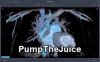 Watch PumpTheJuice GIF by Jay Anderson Breen (@jayandersonbreen) on Gfycat. Discover more 3d heart pumping, exercise love, pumpthelovejuice GIFs on Gfycat