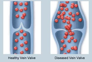 Watch and share Vein Disease GIFs on Gfycat