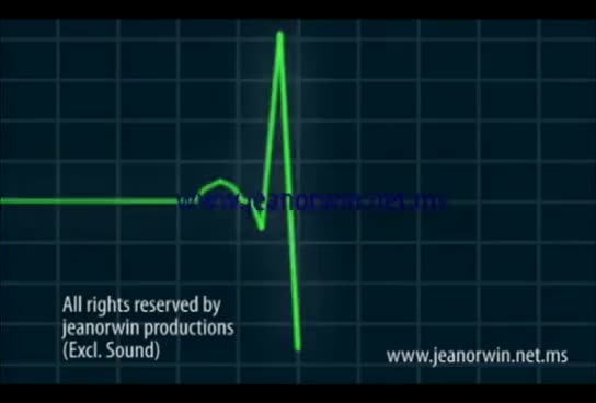 Watch ECG Animation and Ventricular Fibrillation GIF on Gfycat. Discover more related GIFs on Gfycat