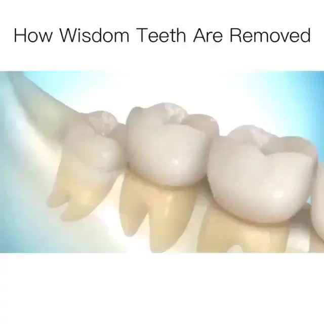 Watch How Wisdom Teeth Are Removed GIF by gangbangkang (@gangbangkang) on Gfycat. Discover more related GIFs on Gfycat