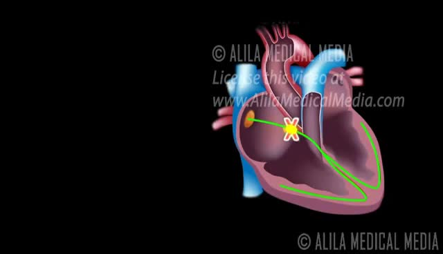 Watch and share Heart Blocks, Anatomy And ECG Reading, Animation. GIFs on Gfycat