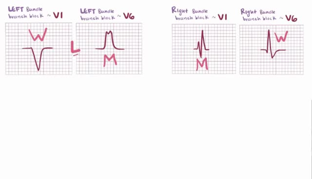 Watch and share Bundle Branch Block - Left, Complete, Incomplete, Causes, Symptoms & Pathology GIFs on Gfycat