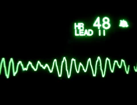 Watch Ventricular Fibrillation GIF on Gfycat. Discover more related GIFs on Gfycat
