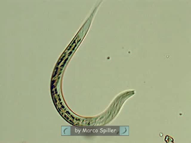 Watch Nematode in action GIF by @shalonen on Gfycat. Discover more nematodes, worms GIFs on Gfycat