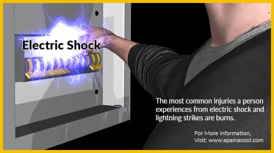 Electric Shock Animation - ePainAssist com GIF by