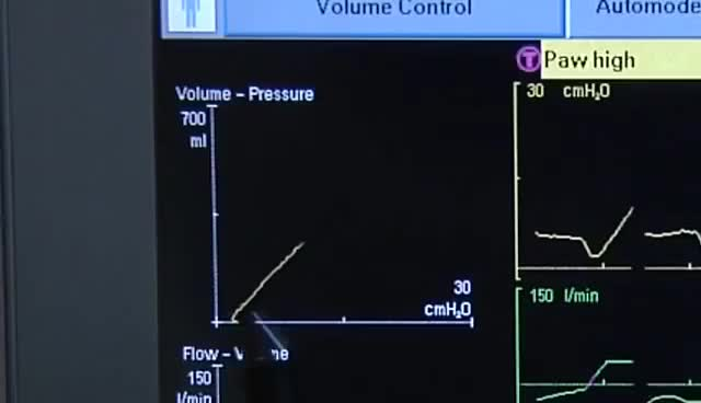 Watch and share Respiratory GIFs and Ventilator GIFs on Gfycat