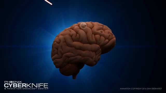 Watch and share CyberKnife Brain Tumor Animation GIFs on Gfycat