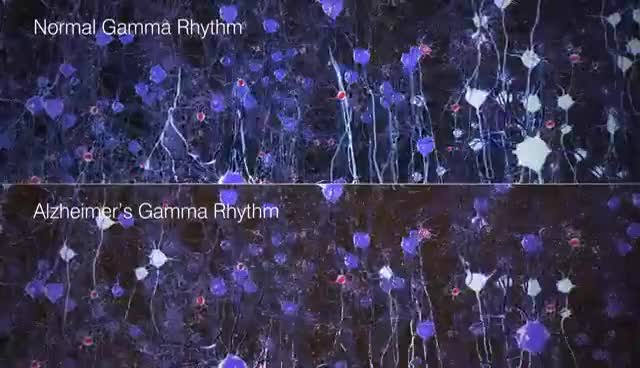 Watch and share Light-based Therapy For Alzheimer's Disease GIFs on Gfycat
