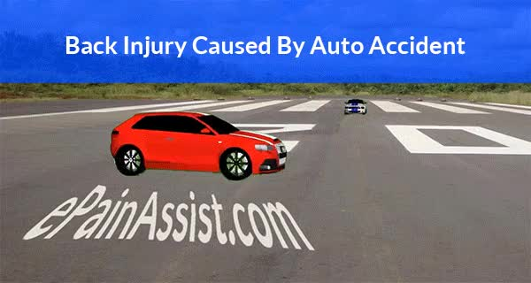 Watch Auto Accident Iinjuries - ePainAssist.com GIF by ePainAssist.com (@epainassist) on Gfycat. Discover more auto accident, auto accident head injury, car accident animation GIFs on Gfycat