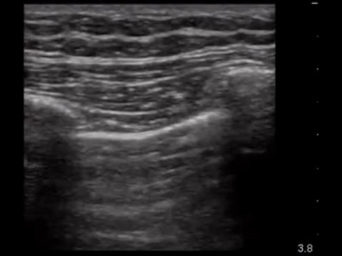 Watch and share Normal Lung With Sliding Visible Below The Pleural Lines – No Pneumo!! GIFs on Gfycat
