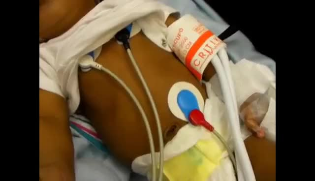 Watch and share Infant Respiratory Distress Signs GIFs on Gfycat